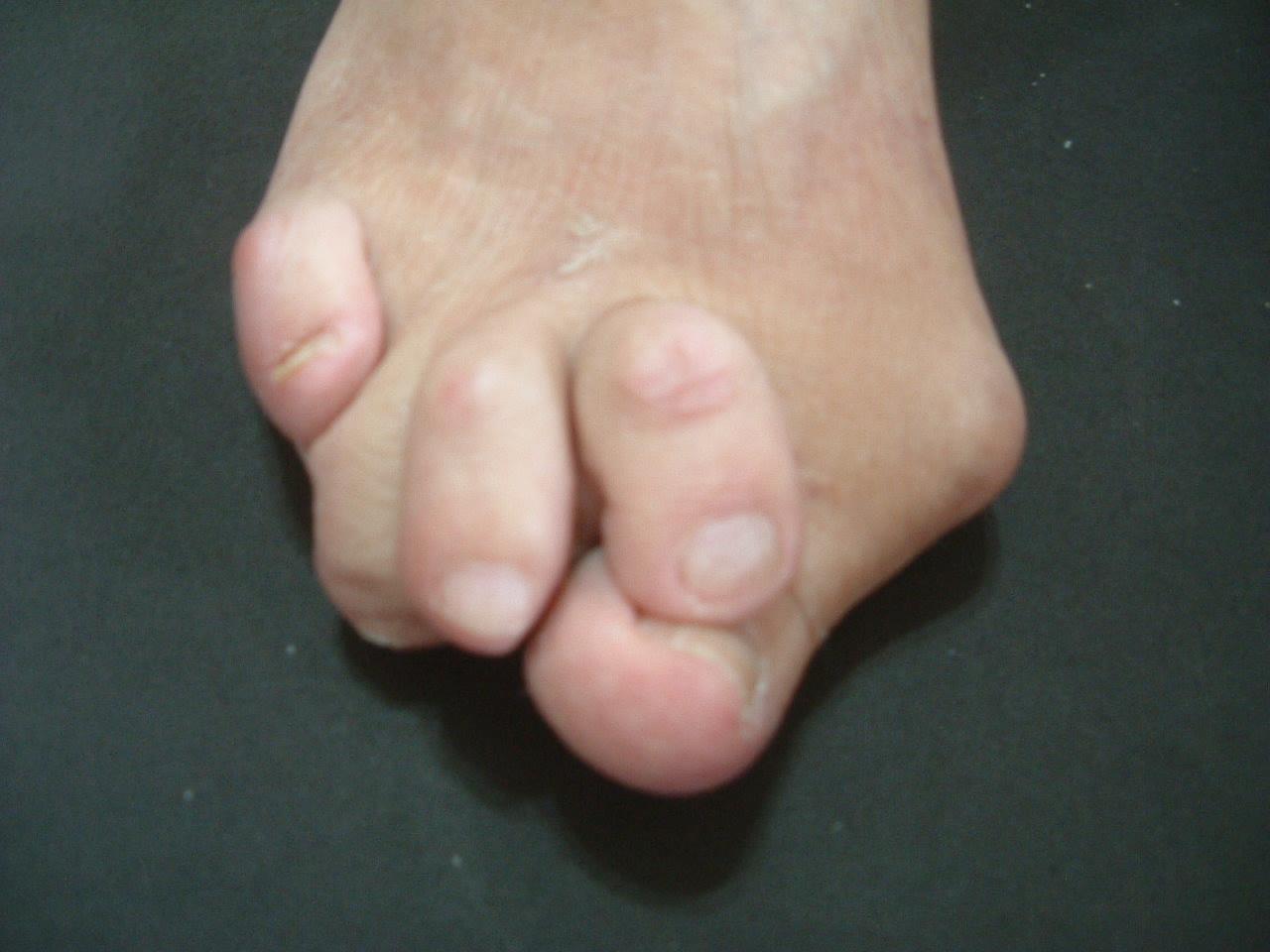 足の痛み外反母趾・巻き爪などの原因の多くは靴。正しく靴を認識いただくために:靴の害と靴選び
