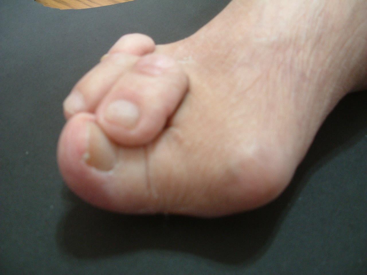 靴の害と靴選び